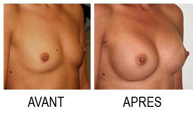 lipofilling mammaire Paris avant apres