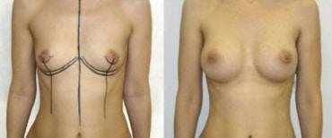 augmentation mammaire Paris avant apres