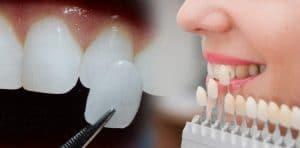 facette dentaire Paris