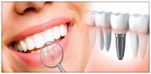 implant dentaire Paris