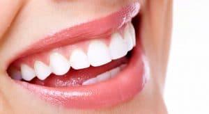 facette dentaire Paris prix
