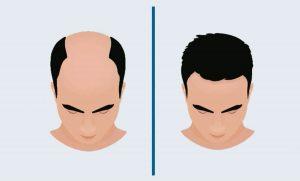 greffe cheveux dhi paris