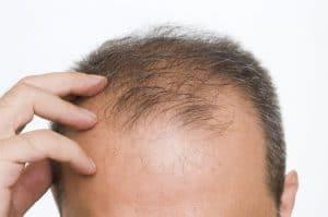 greffe cheveux paris