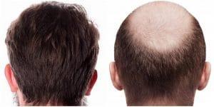 resultat greffe cheveux paris
