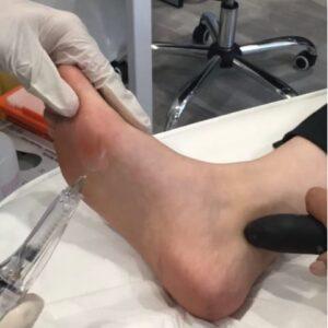 foot lift à Paris